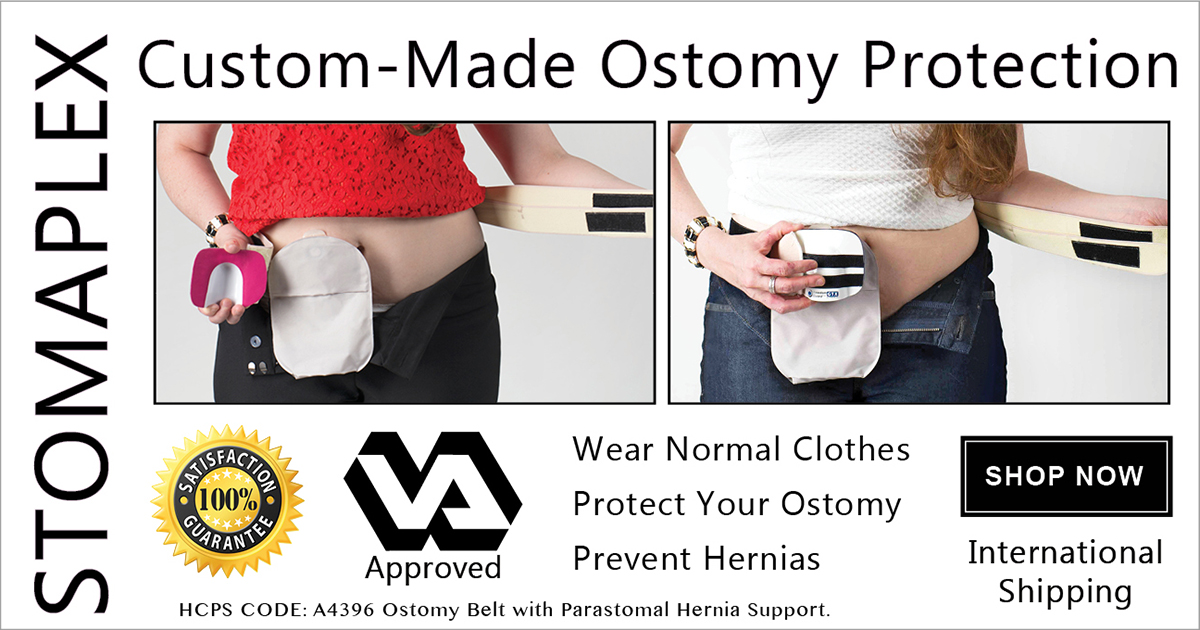 Stoma guard with ostomy belt for stoma protection.