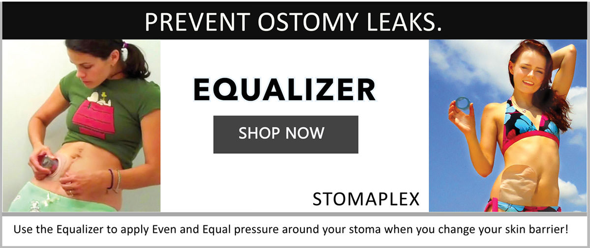 The active lifestyle in you will appreciate the Stomaplex ostomy belt and stomaplex stoma guard that is designed for the ostomate with an active life.