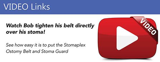 Stomaplex Colostomy Belt and Stoma Guard Video Links.  Watch Bob tighten his belt directly over his ileostomy.
