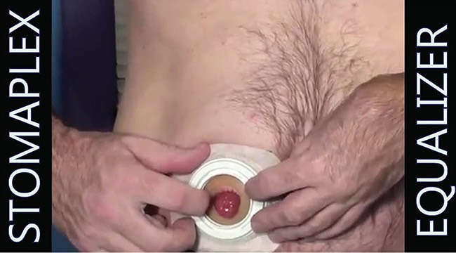Stomaplex Ostomy Care: Bob shows you how to stop leaks around the ostomy stoma by applying pressure on the ostomy wafer with the Equalizer by Stomaplex.