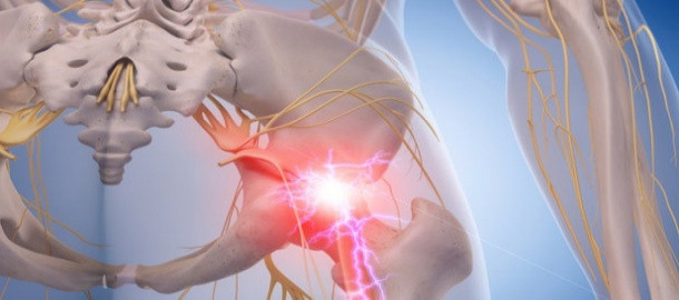 Sciatica and Massage