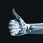 Health Concern:  Bone Health