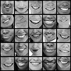 Health Concern:  Oral Health