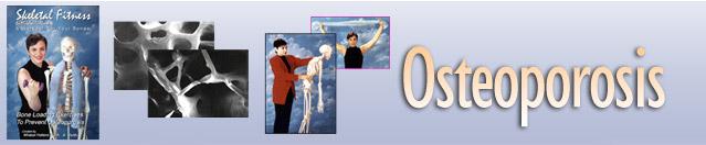hdr-osteoporosis.jpg