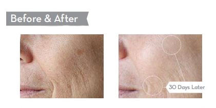 c-serum-before-and-after.jpg