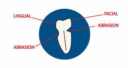 tooth-brushing.jpg
