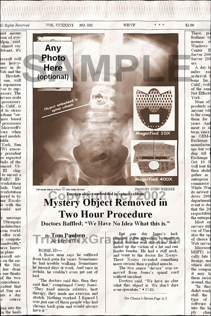 Fake Joke Newspaper Article MYSTERY OBJECT REMOVED IN TWO HOUR PROCEDURE