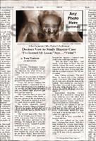 Fake Joke Newspaper Article DOCTORS VOW TO STUDY BIZARRE CASE