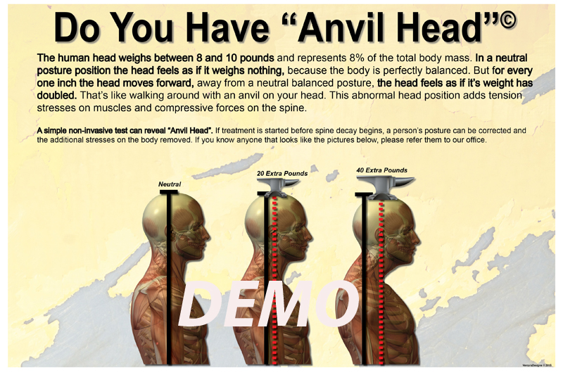anvil-head-poster-demo.jpg