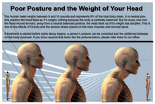 Head Weight and Posture Poster  English