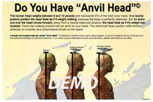 Anvil Head Poster