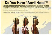 Anvil Head Poster