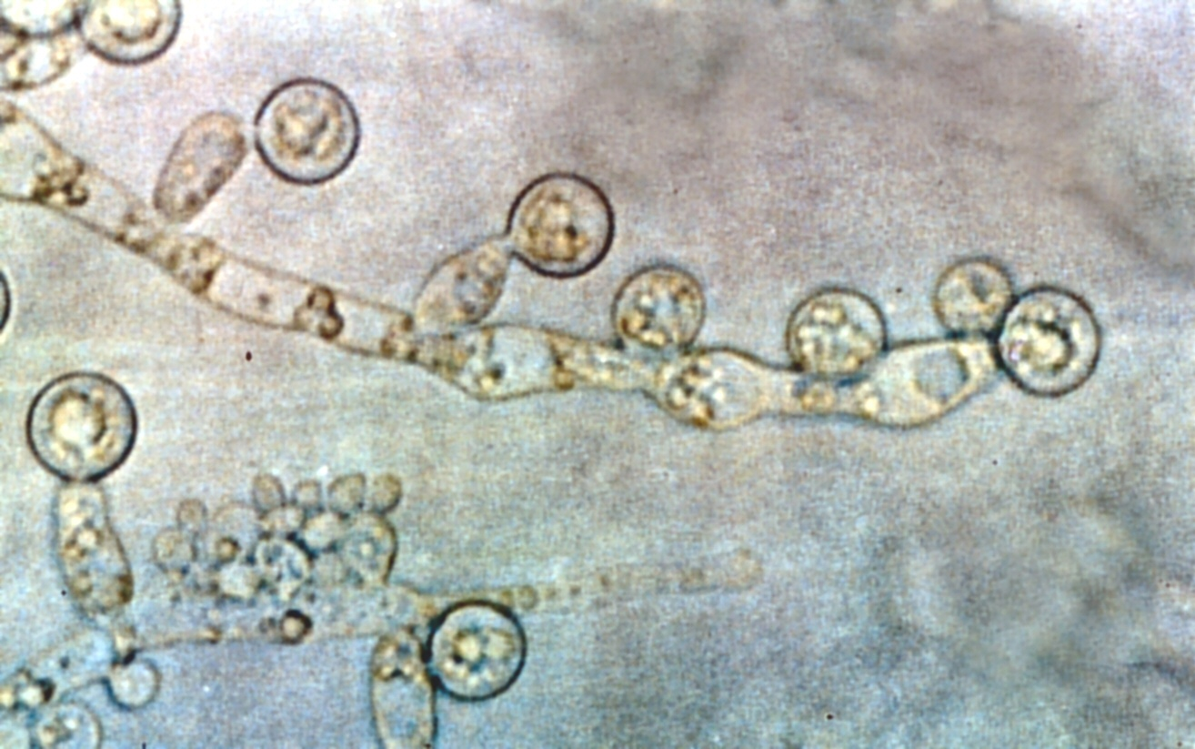 Candida albicans. Photo by GrahamColm.