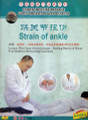 Strain of Ankle