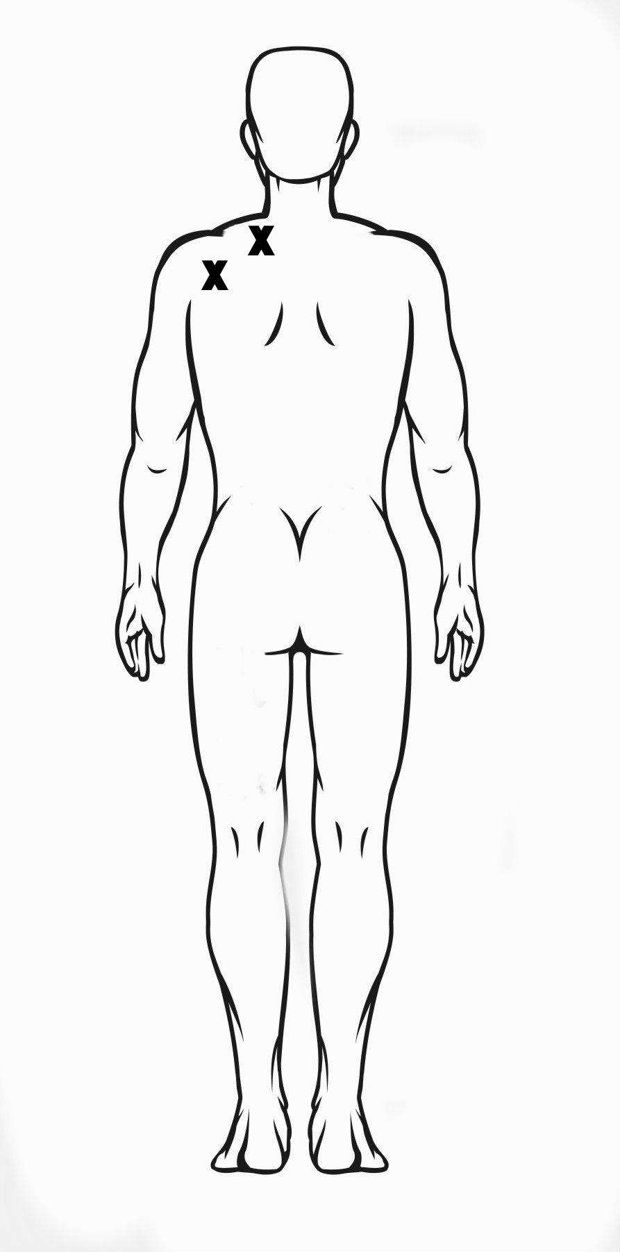 TENS unit placement for shoulder pain.