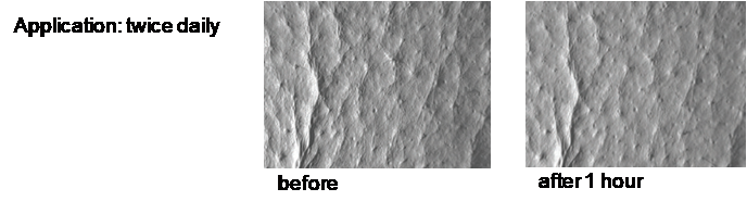re-firm-body-cream-before-and-after.png