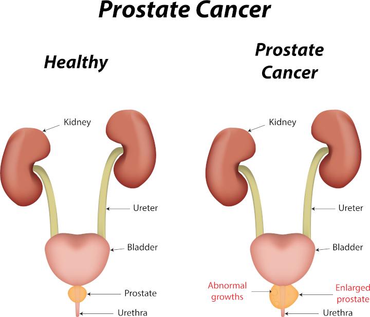 15-prostate02.jpg