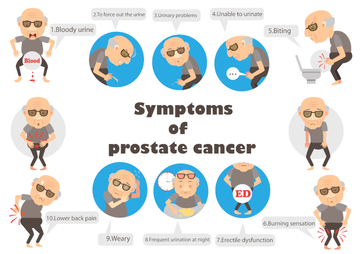 15-prostate05.jpg