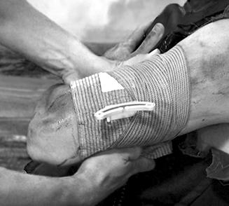 Military Trauma & Hemorrhage Control Wound Dressing - 6