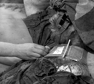 Military Trauma & Hemorrhage Control Wound Dressing - 4