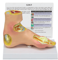 Gout Arthritis Foot Model
