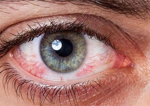 Woman blood shot eye