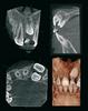 Soredex Cranex 3D CBCT case.