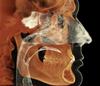 i-CAT Classic 14-bit cone beam system provides comprehensive airway and sinus studies.