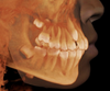 i-CAT Classic 14-bit cone beam system delivers high quality 3D scans each and every time.