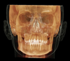 Capture orthodontic records in a single scan with i-CAT Classic 14-bit cone beam system.