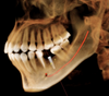 Visualize nerves for precise implant placement with i-CAT Classic 14-bit cone beam system.