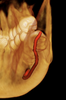 Trace nerves for exact implant placement with i-CAT Classic 14-bit cone beam system.