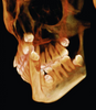 Evaluate supernumerary teeth quickly and effortlessly with i-CAT Classic 14-bit cone beam system