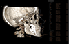 Conduct 3D cephalometric analysis with i-CAT Classic 14-bit cone beam system.