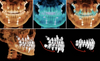 Simulate orthodontic treatments quickly and easily with i-CAT Classic 14-bit cone beam system and Tx Studio software by Anatomage.