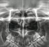 Vatech  PaX-Primo panorex sinus