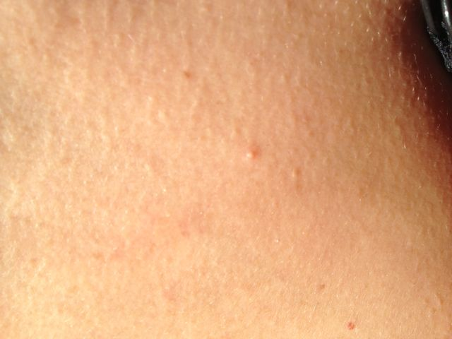 First signs of molluscum contagiosum-4039