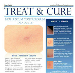Adults Treatment Guide for Molluscum Contagiosum