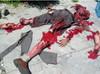 Bomb Victim, Homicide Victim, Mutilation Victim
