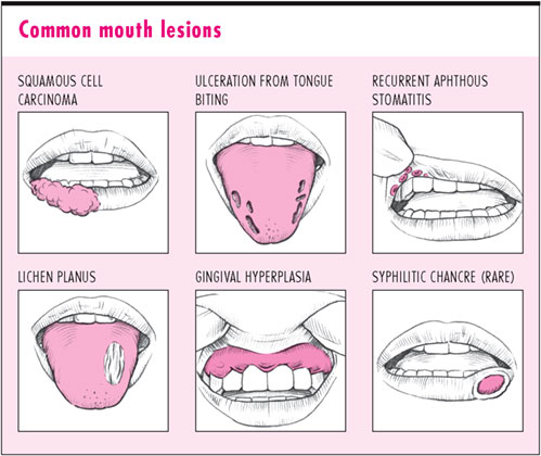 mouth-ulcers2.jpg