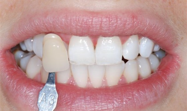 At Home Teeth Whitening Is Easy Fast Safe And Cheap
