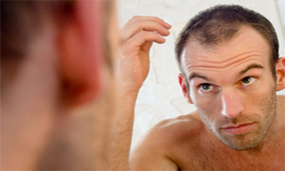hair loss caused by DHt