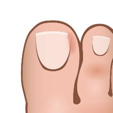 how-to-get-rid-of-ingrown-toenails-trim-off-side.jpg