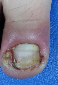 infected-ingrown-toenail.jpg