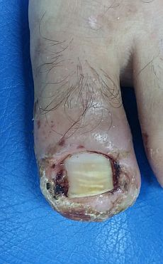 infected-toenail.jpg