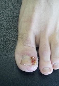 ingrown-toenail-infection-1.jpg