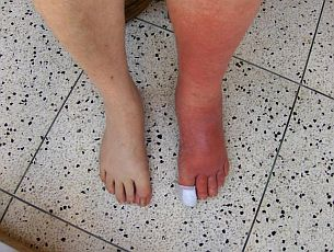 ingrown-toenail-infection-cellulitis.jpg