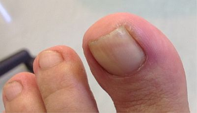 Ingrown Toenail Surgery Curvecorrect