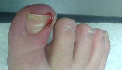 ingrown-toenail-surgery-stage2.jpg