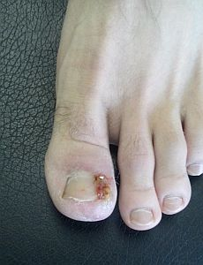 ingrown-toenail-surgery-stage3.jpg
